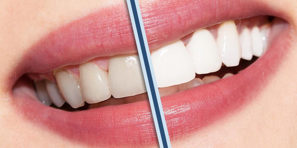 Dentista-estetico