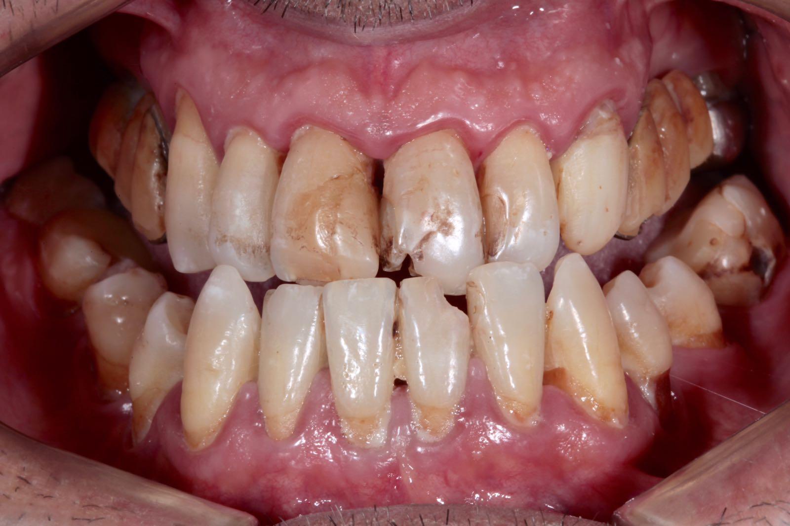 Curare-Parodontite