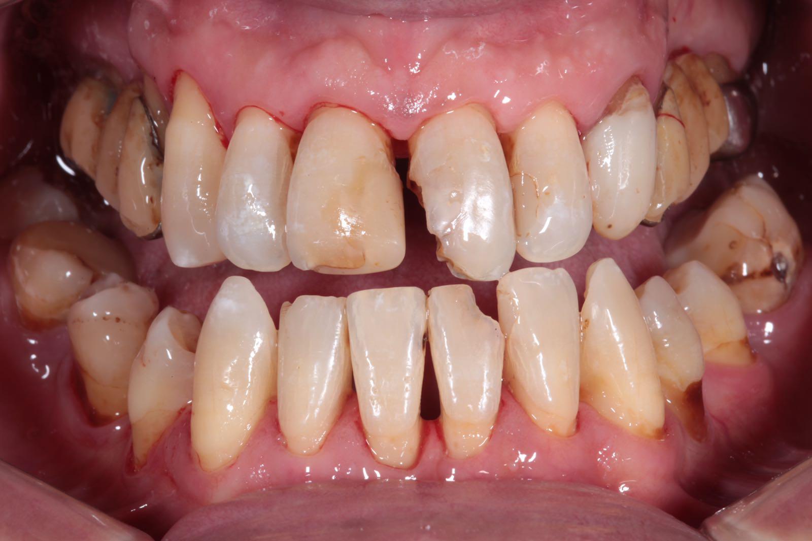 Parodontite-come-curarla