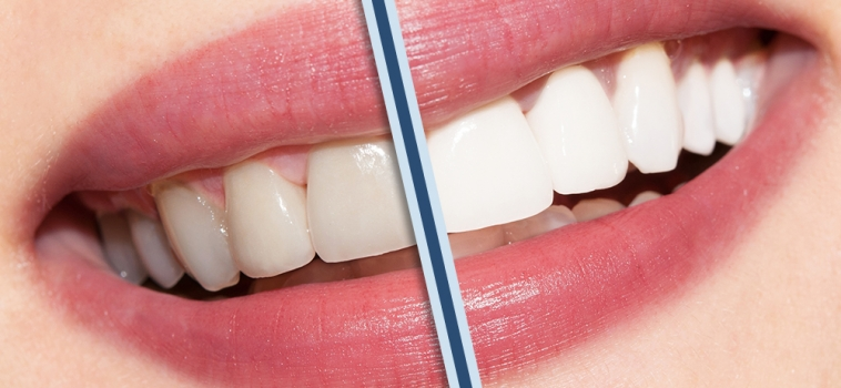 Dentista estetico: di cosa si occupa?