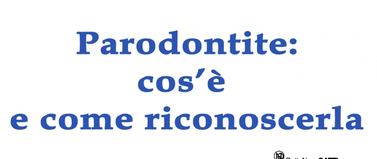 Parodontite: cos'è e come riconoscerla