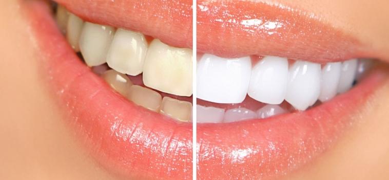 Lo sbiancamento dei denti è dannoso?