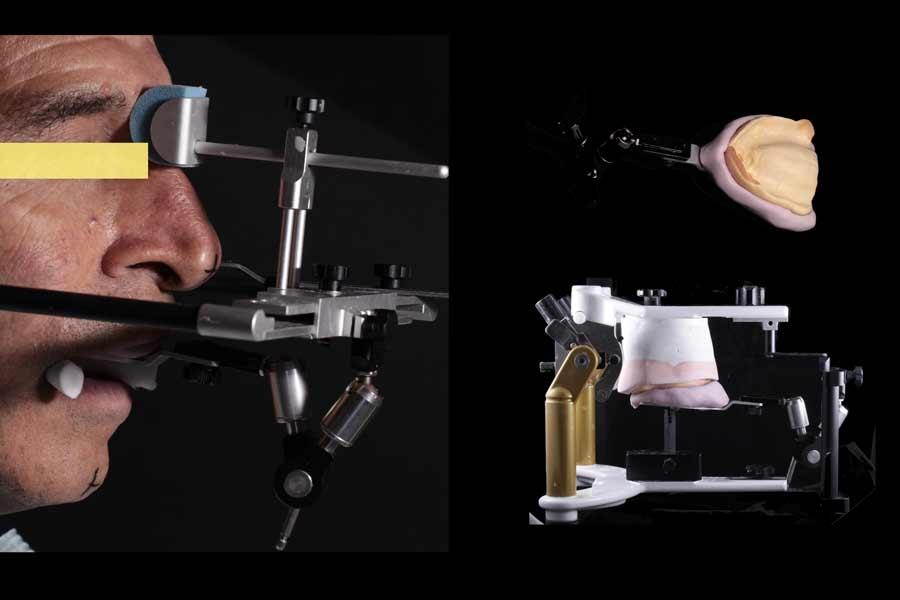 protesi-su-impianti4