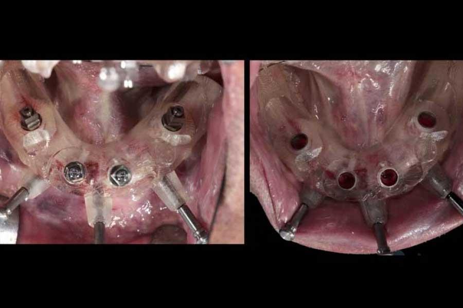 protesi-su-impianti5-2xxbqi6xumk0i0o522vzm2